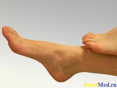 nogi-boli