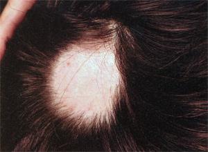 Облысение волос. выпадение волос