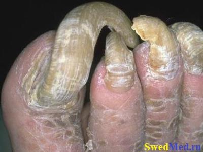 Как избавиться от грибка ногтей отзывы