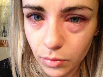 allergiya-apelsiny-simptomy-3