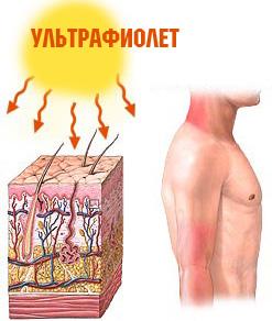 allergiya-sol