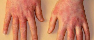 allergy kholod