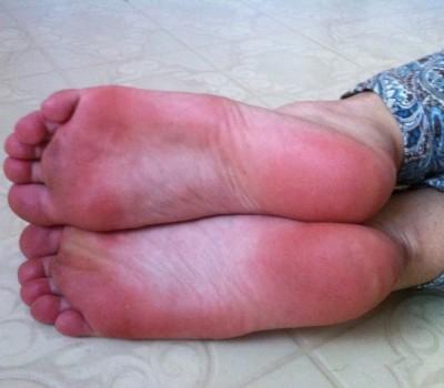 mozol-nogi1