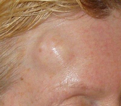 Жесткая шишка на лбу у взрослого