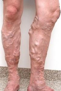 ustalost-nogi-krema-2
