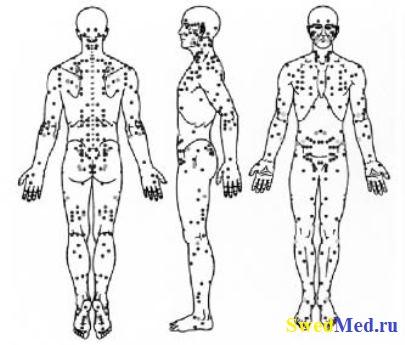 farmakopunktura-tochki