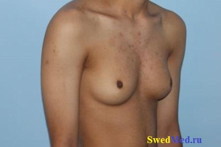 uzel-molochnaya-zheleza-gynecomastia