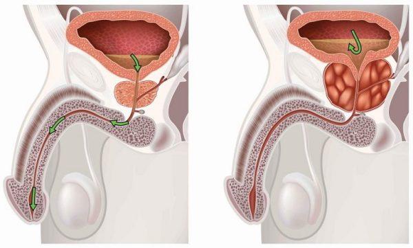 Травмы мочевого пузыря во время секса