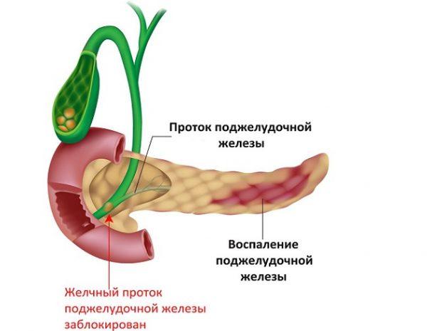 Как остановить понос при панкреатите